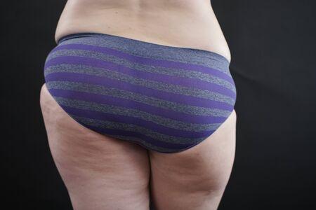 cellulite skin at woman plus size buttocks on black studio background Zdjęcie Seryjne