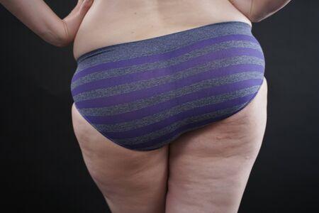 cellulite skin at woman plus size buttocks on black studio background Standard-Bild