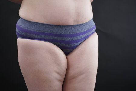 plus size woman shows her body in stretch marks and hair with cellulite and encourages you to love and accept yourself in any way. black background in the Studio Zdjęcie Seryjne