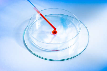 Macro close up of scientist or doctor working with blood. Covid 19 blood test concept. Glass pipette and Petri dish. Coronavirus variant test. Vaccine side effects and allergic reaction research.