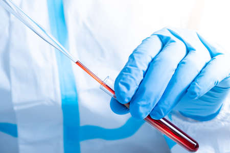 Macro close up of scientist or doctor hands working with blood. Covid 19 blood test concept. Glass pipette and tube. Coronavirus variant test. New virus strain mutation research and discovery.