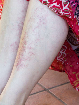rash: Red rash from combining sunbathing and medication. Stock Photo