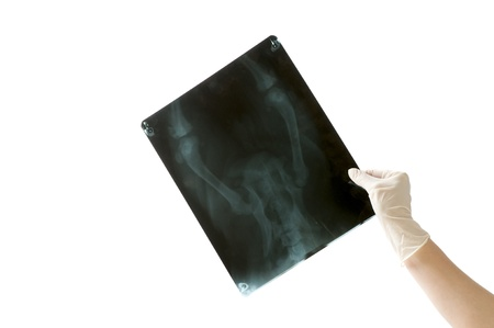 x-ray image in doctor's hand isolated on white background photo