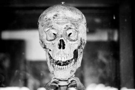 human skull head model
