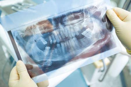 dientes sanos: imagen panorámica de rayos X de los dientes humanos. Dentista sostiene imagen panorámica de rayos X en sus manos en guantes médicos amarillo. imagen panorámica de rayos X dentales en la cirugía dentistas