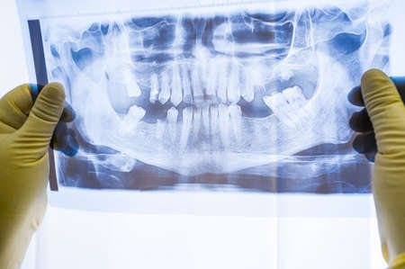 Full mouth panoramic in X-ray, showing all the teeth. Doctor studying dental x-ray scan on light. Panoramic x-ray of human jaw Stock Photo