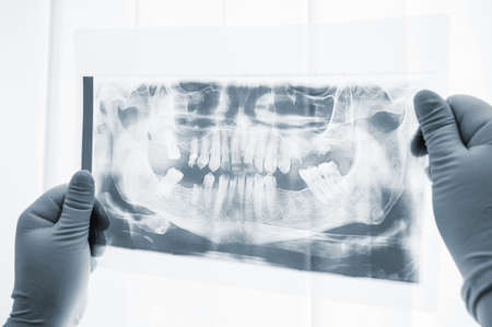 Dental surgery preparation x-ray scan close-up. Surgeon studying x-ray photo on light before operation. Dental surgery procedure