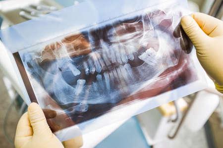 Agomphiasis example on panoramic x-ray scan. Plenty of lost teeth on human jaw x-rau photo. Agomphiasis diagnosing at hospital
