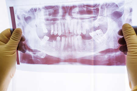 Dental x-ray with periodontitis problems, lost teeth and caries. Examination of dental x-ray photo on human jaw with very bad teeth Stock Photo - 81363270