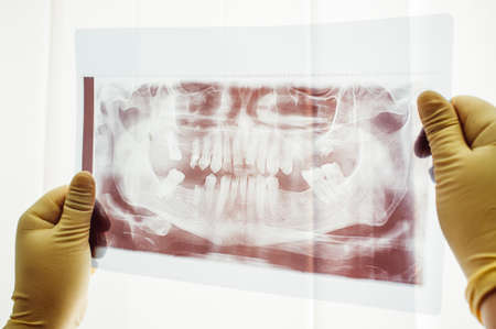 Panoramic scan of dental mutation closeup. Study of unusual dental problem. Doctor research ways of treatment of dental mutation Stock Photo