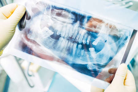 Dentistry internship training. Diagnostic and therapy. Medical student examining panoramic x ray. Human jaw, plenty of lost teeth. 免版税图像