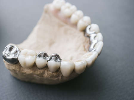Human jaw layout with ceramic and metal dentures. Dental prosthesis template 写真素材