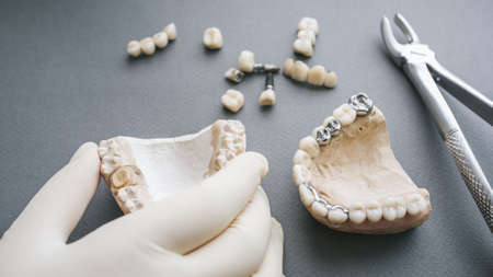 Orthodontics and prosthetics. Dentist hand holding gypsym jaw. Dentures and forceps on grey background.