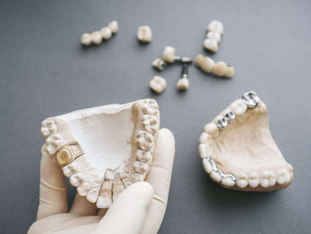 Orthodontics and dentistry. Dentist hand holding gypsym jaw. Dentures and forceps on grey background. Stock fotó