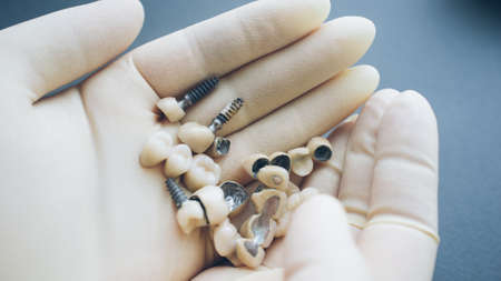 Teeth reconstruction and dental healthcare. Orthodontist holding ceramic implants in hands.