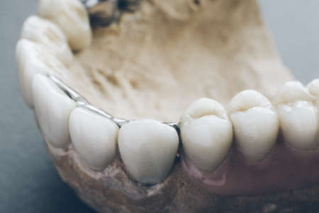Dentistry implantation. Human jaw mold with artificial dentures.