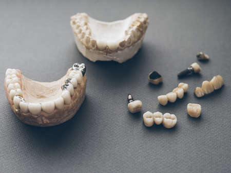 Orthodontics and prosthetics. Two gypsum jaws dentures crowns on gray background. Stock Photo