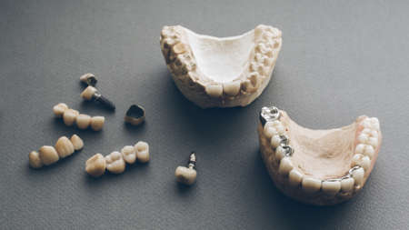 Dental prosthesis equipment and tools. Two gypsum jaws dentures crowns on gray background. Stock fotó