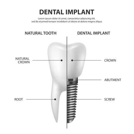 Vector 3D Render réaliste dent blanche prothèse dentaire agrandi isolé sur fond blanc. Concept dentaire, médecine et santé. Modèle de conception de la structure de la prothèse. Vue de face