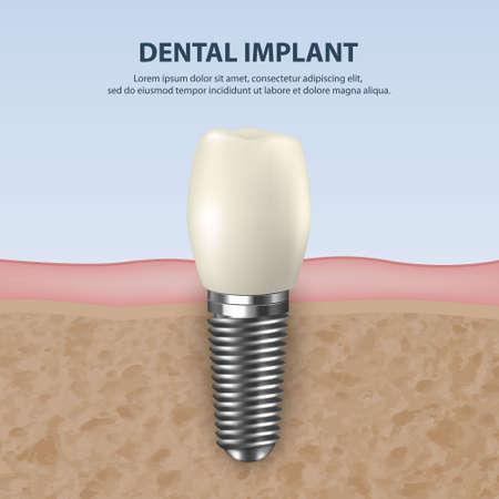 Vector achtergrond met 3D-realistische render witte tand implantaat kunstgebit close-up. Tandheelkunde, geneeskunde en gezondheidsconcept. Ontwerpsjabloon van prothesestructuur. Vooraanzicht Vector Illustratie