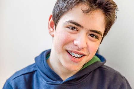 Muchacho caucásico feliz y sonriente con las paréntesis en los dientes