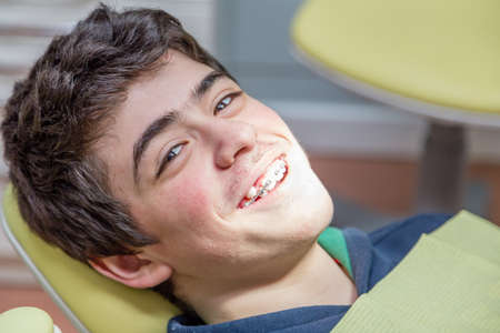 Caucasian teenager with acne skin lying on the dentist chair is smiling showing braces