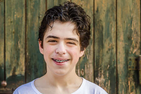 teen boy face: teenager with acne skin smiling while showing braces Stock Photo