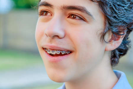 close-up of Caucasian boy with acne skin smiling and showing an orthodontic appliance