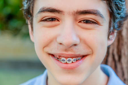 toothcare: close-up of Caucasian boy with acne skin smiling and showing an orthodontic appliance
