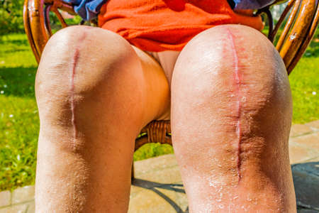 replacement: scars of old person legs who underwent knee replacement operations Stock Photo