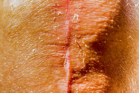 scars: scars of old person legs who underwent knee replacement operations Stock Photo