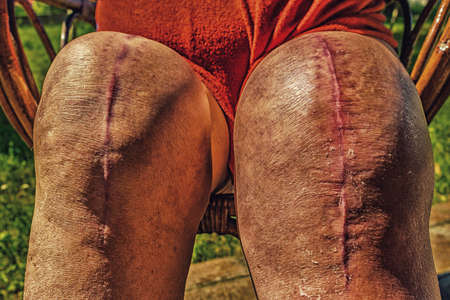articulation: scars of old person legs who underwent knee replacement operations Stock Photo