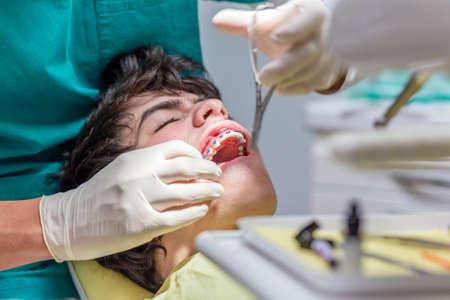 niño con la boca abierta acostado en el sillón dental, mientras que el ortodoncista es la organización de los frenos en los dientes Foto de archivo