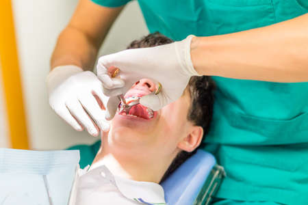 orthodontist: guy on the dentist chair while the orthodontist is pulling out a baby tooth with pliers