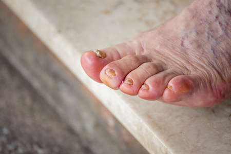 Illice finger with whitlow in foot of elderly woman with calluses and blood circulation difficulties Stockfoto
