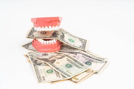 Modello dentale con dollaro USA