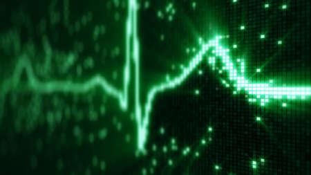 prophylaxis: EKG electrocardiogram pulse waveform on pixelated screen. Computer generated illustration Stock Photo