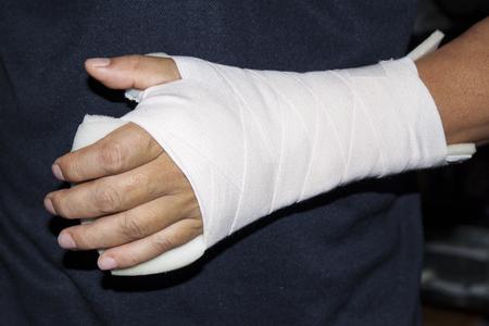 splint: Lesi�n en la mu�eca con una f�rula supprted