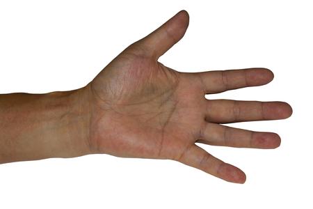 hematoma: Bruise on the palm isolated on the white background