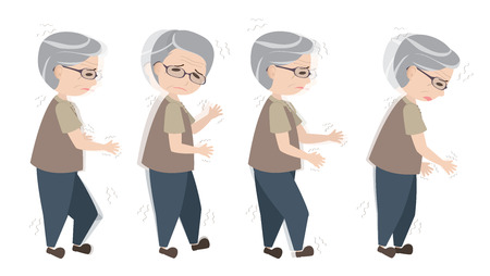 Oude man met Parkinson symptomen moeilijk lopen Vector Illustratie