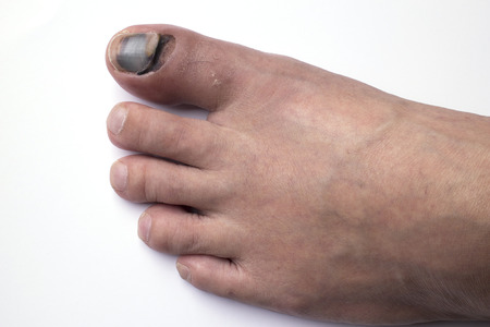 podiatry: Phalanx fracture and bleeding under skin and nail