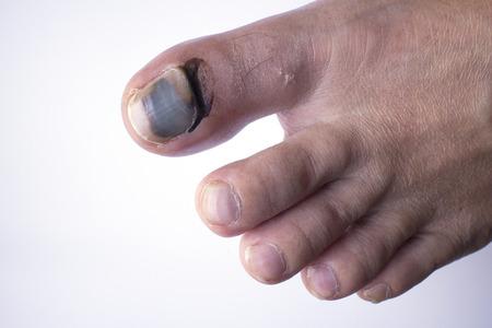 phalanx: Phalanx fracture and bleeding under skin and nail