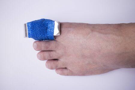splint: fractura de la falange del dedo del pie en la férula y gasa elástica Foto de archivo