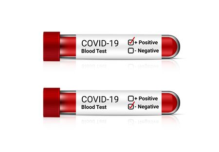 Mock up Realistic Covid-19 Blood Test Tube for flu Positive or Negative check. Hospital Tool on white background. Object Vector illustrator. Healthcare and medical concept design. Vettoriali