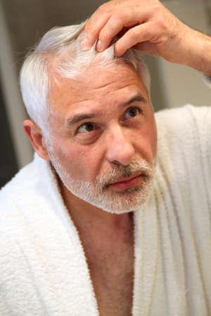 Uomo anziano con problemi di perdita di capelli