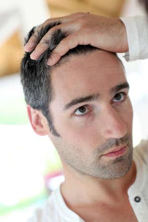 calvicie: El hombre frente a mirrror mirando a su pelo