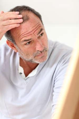 calvicie: Senior hombre mirando su pelo en el espejo