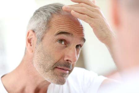 bald man: Hombre mayor y problema de pérdida de cabello
