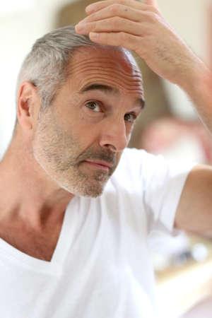 baldness: Senior man and hair loss issue