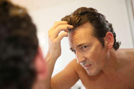calvitie: Homme d'�ge moyen pr�occup�s par la perte de cheveux